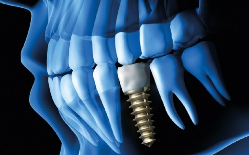 Revolutionary Solution for Dental Implant Technology protected by patent